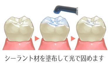 シーラントで虫歯のできやすい溝を埋める