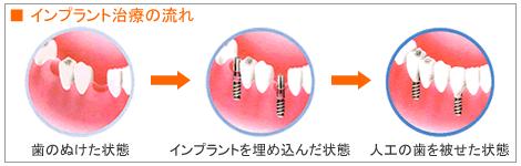 残っている歯にもやさしい